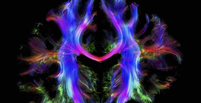 Connessioni neurali nel cervello umano